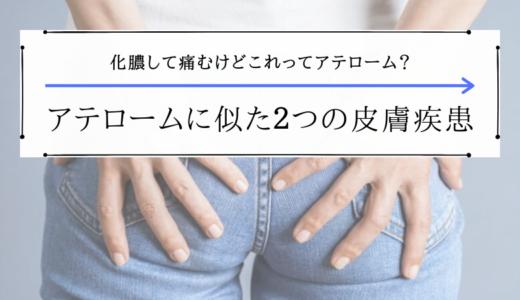 化膿して痛むアテロームの原因・対処法と似ている2つの皮膚疾患